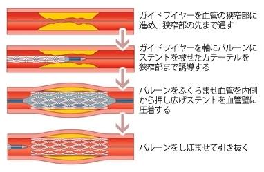 img-kyoshinsyo04.jpg